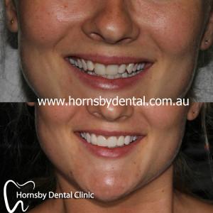 Cosmetic_dentisty_Hornsby.jpg